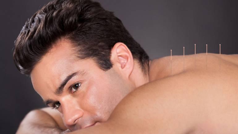 Akupunktio
