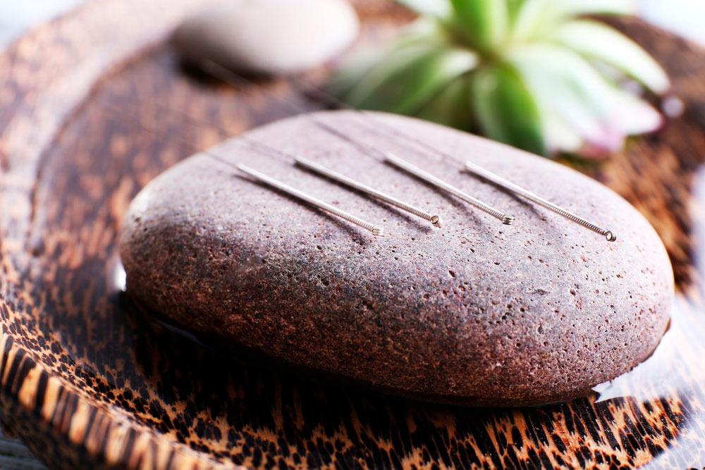 Akupunktio ja vyöhyketerapia